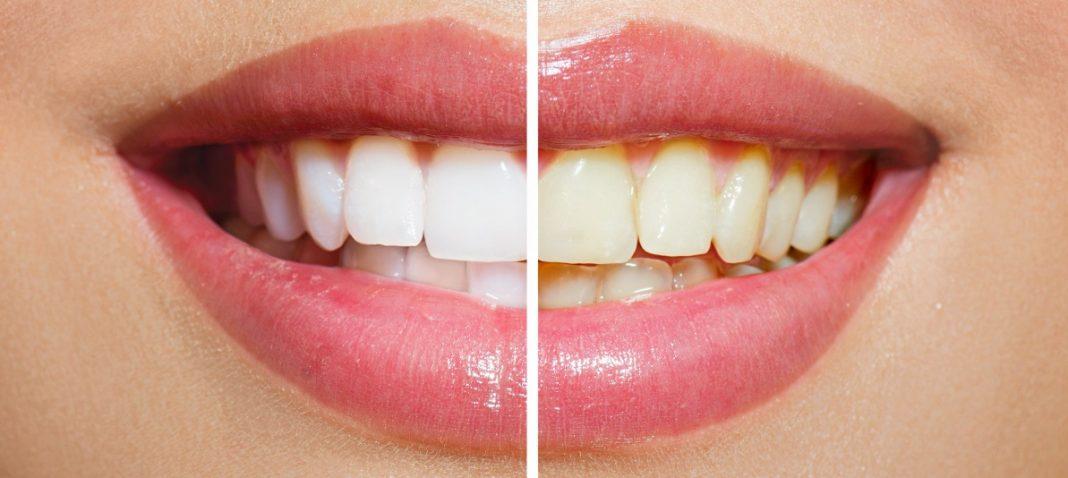 Melhor Creme Clareador Dental
